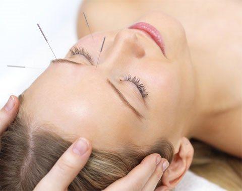 acupuntura- randallita