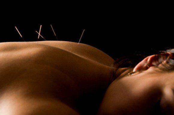 acupuntura  sofia randall