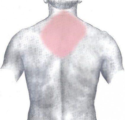 espalda marcando cervicales