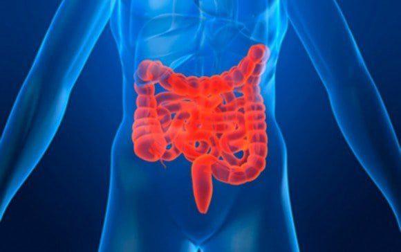 intestino ¿Cuál es el tratamiento alternativo de la Enfermedad de Crohn?, por la Dra. Elena Bejarano