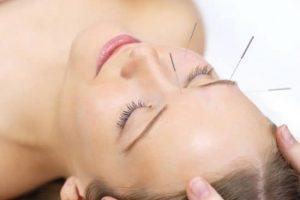 La acupuntura y sus mecanismos por María Martrat