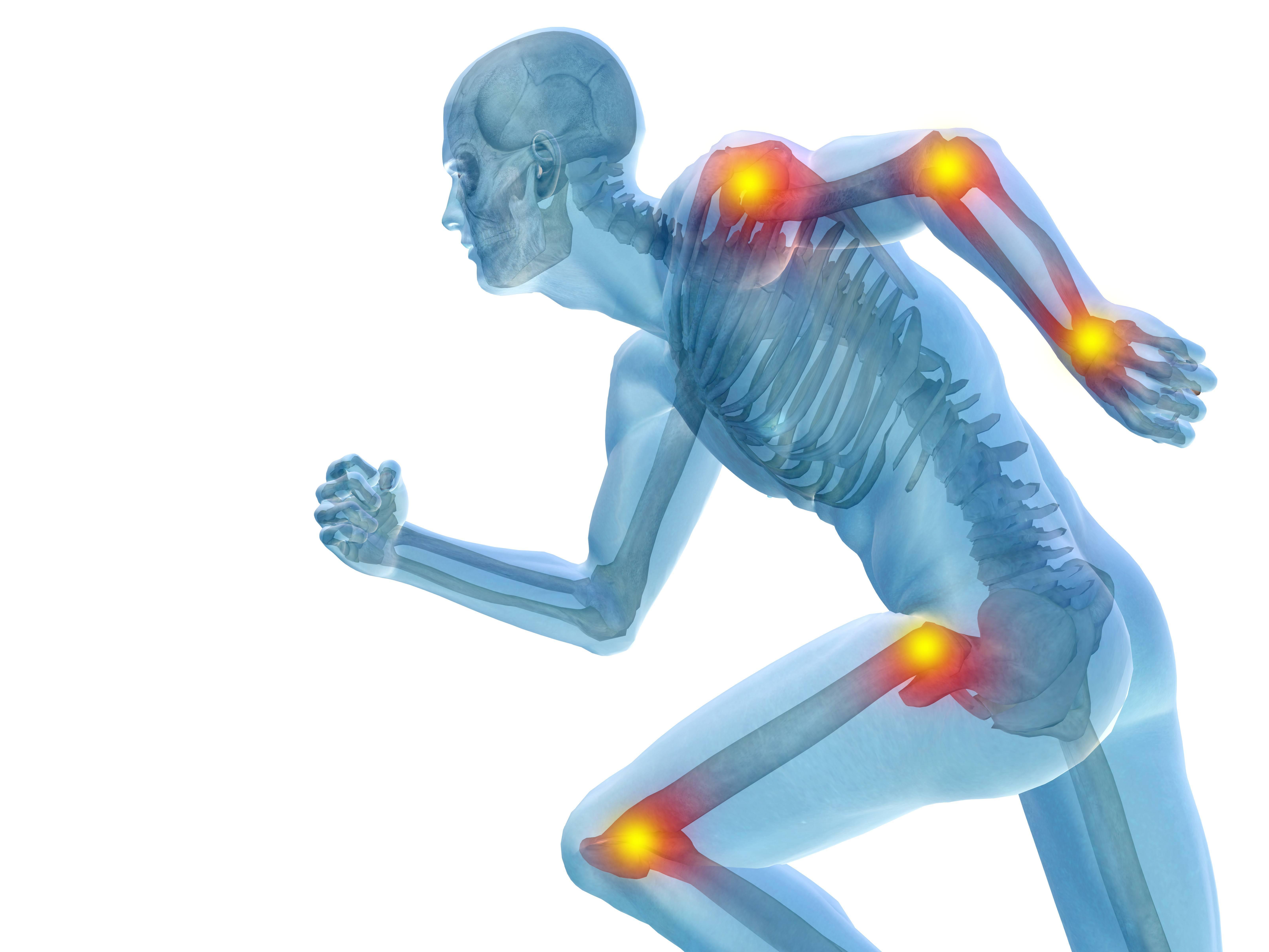 Huesos y articulaciones débiles o enfermas: dieta reconstructiva y un secreto curativo
