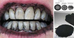 dientes con carbon activado