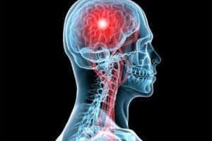 El Derrame Cerebral como Experiencia Espiritual