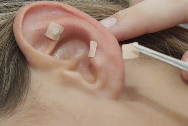Terapia auricular_opt
