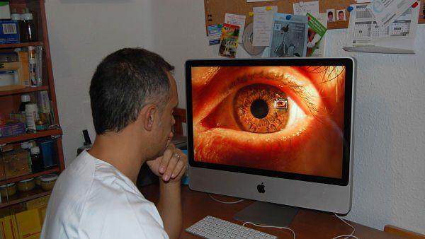 Examen del iris