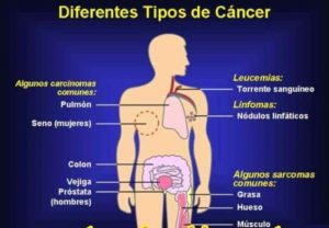 20170806 jariel id130250 Tipos de cáncer - Cómo protegernos ante un riesgo de cáncer - hermandadblanca.org