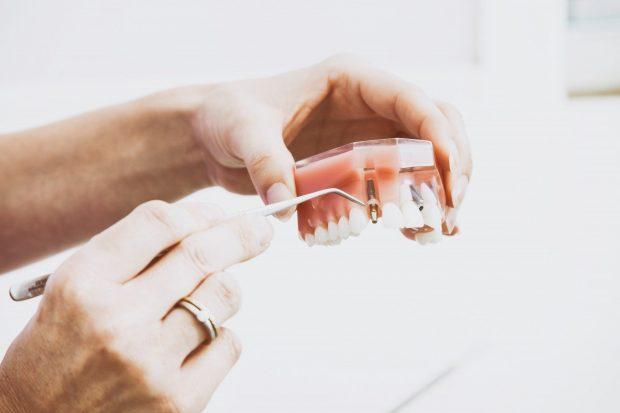 20180227 paedomabdil23593 id143891 odontologia neurofocal 2 - ¿Qué es la Odontología Neurofocal? - hermandadblanca.org