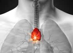 timo como hacer un inventario moral con el centro cardiaco y el cuarto rayo ID173170 - hermandadblanca.org